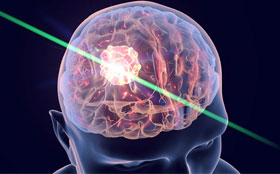 Graphic of a laser going through the damaged part of a brain to treat seizures