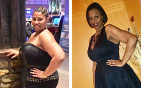 Michelle before and after weight loss surgery