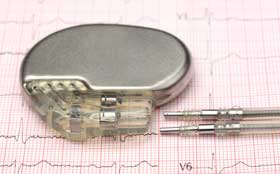 An image of a cardiac pacemaker at Tufts Medical Center's HCM Center in downtown Boston, MA.