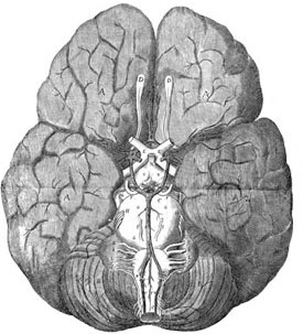A piece of art depicting Wren's brain drawing, part of the Neurology, Illustrated exhibition at Tufts Medical Center in Boston.