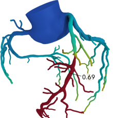 3D Color Code model of the heart flow
