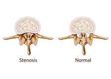 A diagram that shows the difference between spinal stenosis and a normal spine