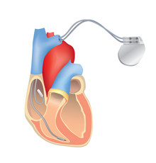An illustration of a heart with an ICD