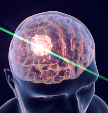 An image of a laser surgery.