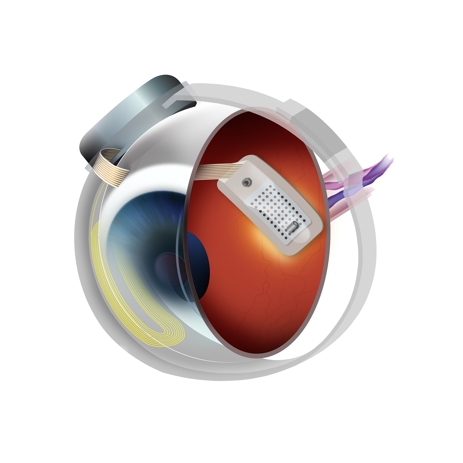 Illustration of bionic eye surgery
