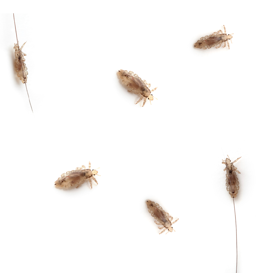 Dr. Lynne Karlson, MD shares new thoughts on lice