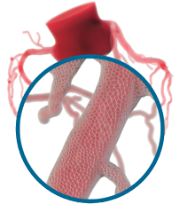 Image of the heartflow technology