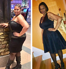 Michelle W before and after weight loss surgery