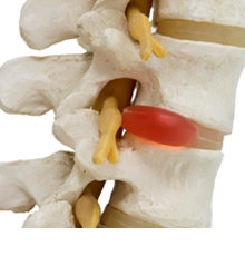 An example of a disc absorber in a spine