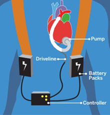 Graphic of a person wearing an LVAD