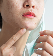 A woman looking at acne on her chin