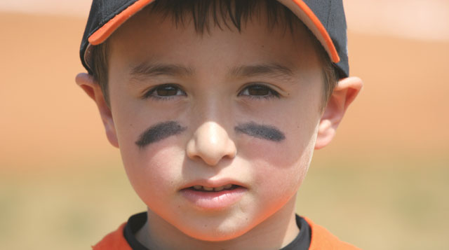 A kid with a baseball eye injury to go along with a story for Tufts Medical Center in downtown Boston, MA.