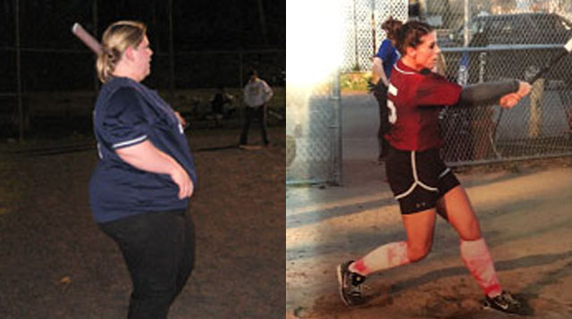 Emily Farnham received weight loss surgery at Tufts Medical Center in downtown Boston, MA.
