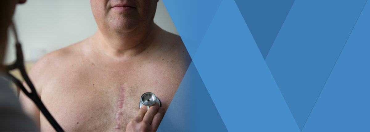 Man with a scar from a heart procedure.